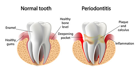 oc gum disease treatment