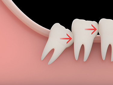 wisdom teeth removal santa ana