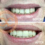 Santa Ana Dentist Orange County Before and After