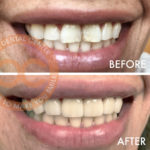 Orange County Cosmetic Dentist Orange County Before & After