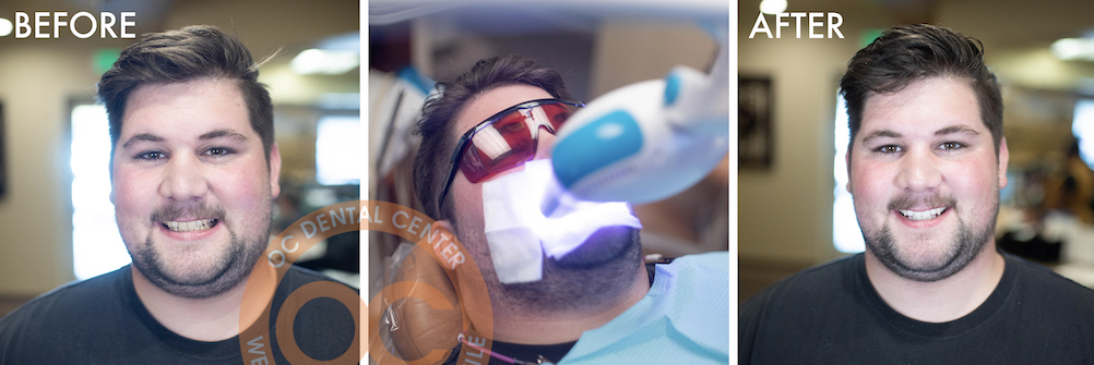 teeth whitening in santa ana