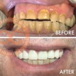 orange county veneers santa ana cosmetic dental office