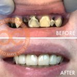 orange county dental implant specialist santa ana